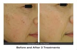 Age spot removal | Surrey Skin Care | Sunningdale & West Byfleet